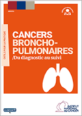 Cancers-broncho-pulmonaires-Du-diagnostic-au-suivi_large_vignette_publication