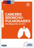 Cancers-broncho-pulmonaires-Du-diagnostic-au-suivi_large_vignette_publication